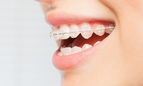 ADI-Full-Mouth-Cosmetic-fixed-braces